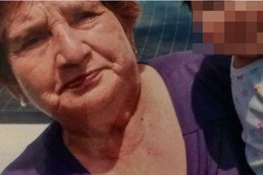 El calvario de Bertina: Médico enfrentará a la justicia por dejar tijera quirúrgica en estómago de mujer de 77 años