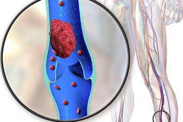 Más allá de los pulmones: Estudio revela los 34 efectos del coronavirus en el cuerpo humano