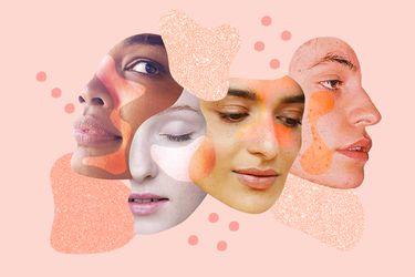 Por qué debemos hablar de características y no de imperfecciones en la piel