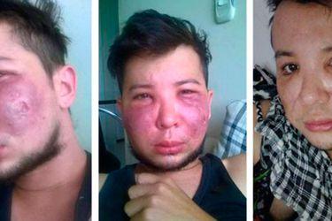 """""""Tenía mi cara destruida, podrida, me salía pus"""": los peligros de caer en malas manos al hacerse cirugías estéticas"""