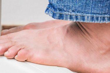 Cómo cuidar los pies durante el verano