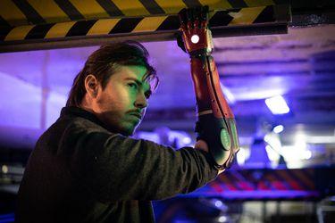 Un hombre británico recibió un brazo biónico inspirado en Venom Snake de Metal Gear