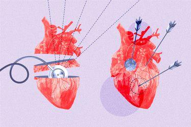 Síndrome del corazón roto: ¿Se puede morir de pena?