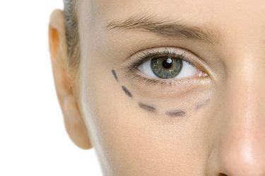 Ojeras de cuarentena: cómo combatirlas