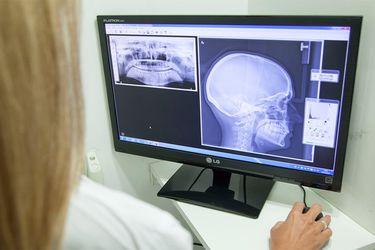 mandibula-radiografia