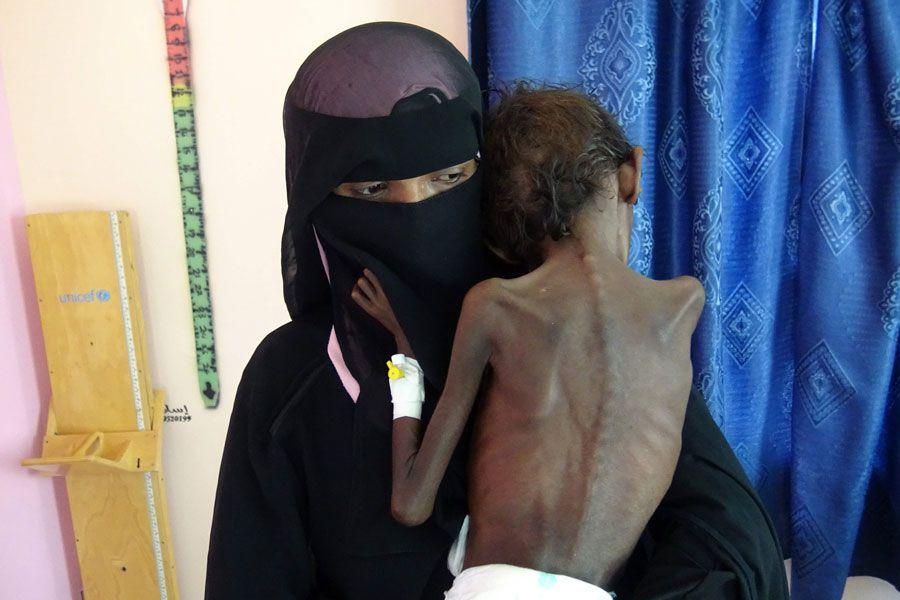 hambruna en yemen
