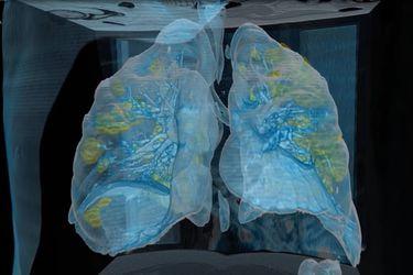 El impresionante video que muestra el daño pulmonar de un paciente con coronavirus
