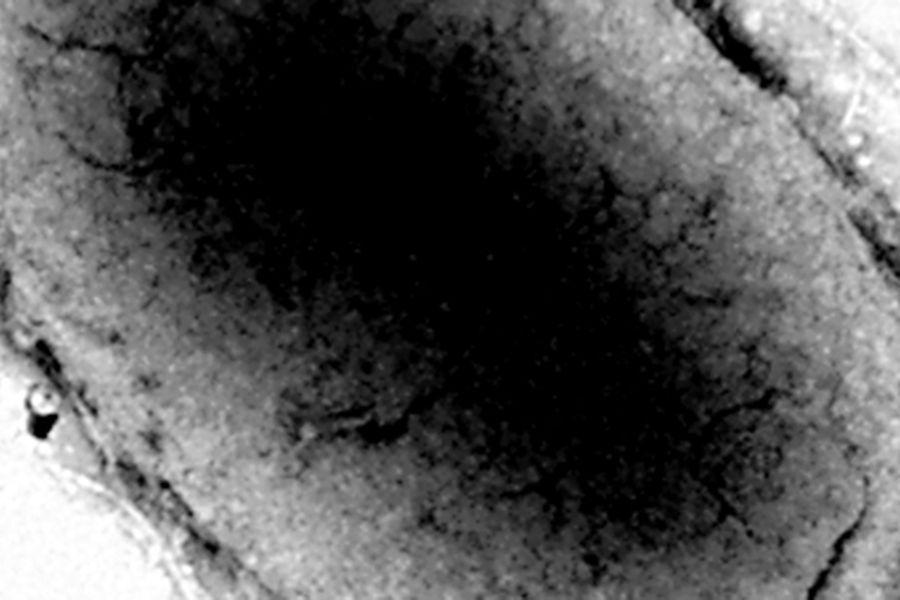 bacteriaweb