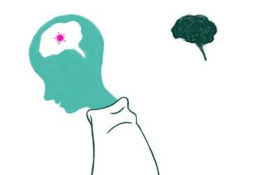 Estudio en 84 mil personas: Covid-19 envejece el cerebro en 10 años y disminuye CI en 8,5 puntos