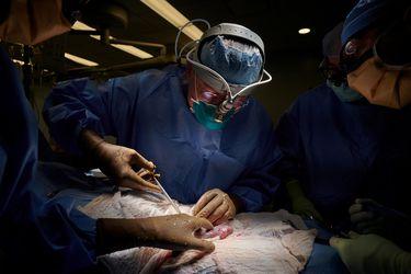 """""""Un momento transformador"""": Por primera vez científicos logran trasplantar con éxito un riñón de cerdo en un humano"""