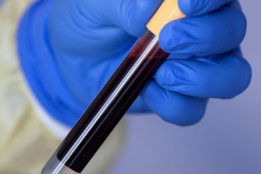 Estudio de U. de Oxford en 17 millones de personas: ¿Qué dice la investigación más grande realizada hasta ahora sobre el coronavirus?