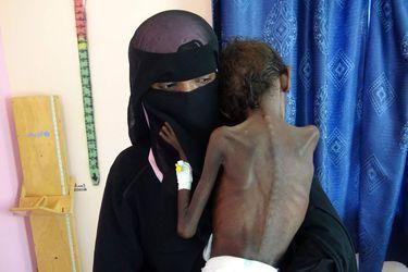 """Más de 200 ONG alertan que 34 millones de personas tienen """"alto riesgo"""" de morir por desnutrición en el mundo y piden ayuda urgente"""