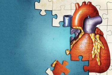 Órganos perdidos: ocho historias de trasplantes fallidos