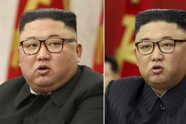 Kim Jong Un perdió peso y los norcoreanos están alarmados