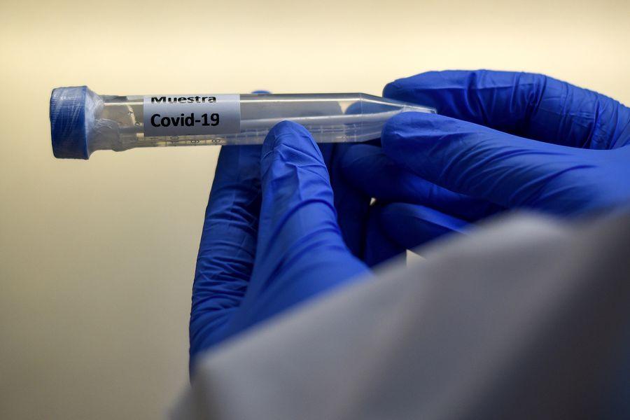 Muestra de coronavirus. Foto referencial