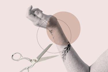 Todos cometemos errores: Cómo borrar un tatuaje