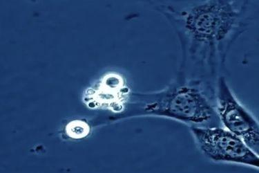 Científicos logran calcular por primera vez la velocidad de la muerte celular