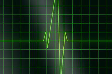 Mortalidad por enfermedades crónicas sube de 73% a 86% en los últimos 20 años en Chile