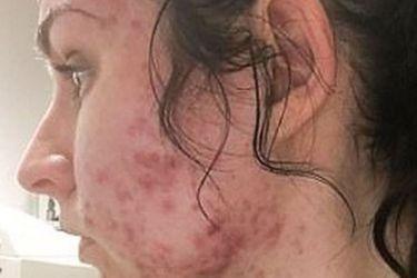 judith-mcdonald-acne