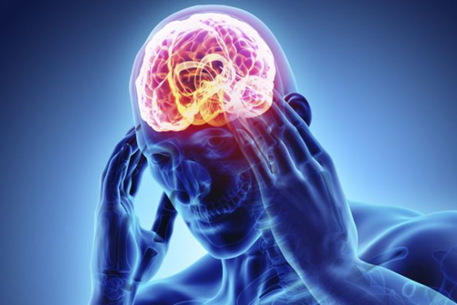 Accidentes cerebrovasculares: la otra consecuencia del coronavirus - La  Tercera