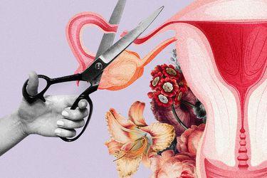 Mujeres que no quieren ser madres: La esterilización femenina como opción