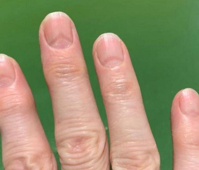 Uñas Covid: como unos cambios en las uñas te pueden indicar si alguna vez  tuviste coronavirus - La Tercera