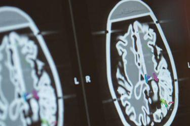 El Covid-19 altera el volumen de materia gris en el cerebro, según un estudio