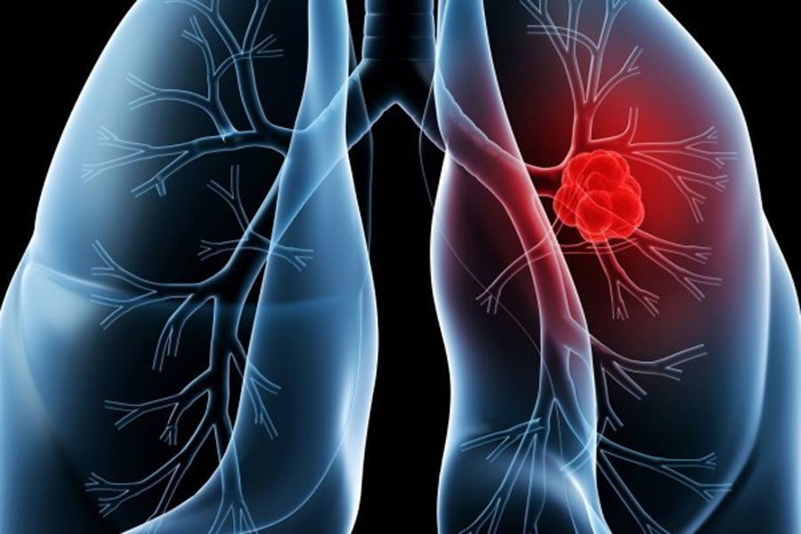 cáncer-de-pulmón