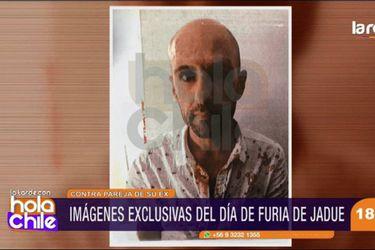 Revelan imágenes de Sergio Jadue ensangrentado tras pelea en Miami